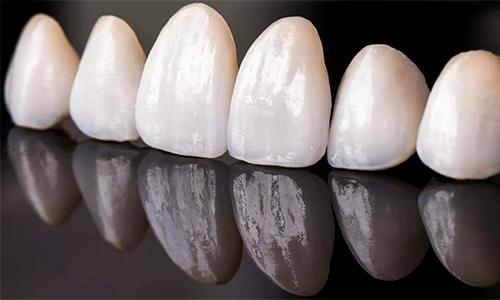 клиника эстетической стоматологии фото