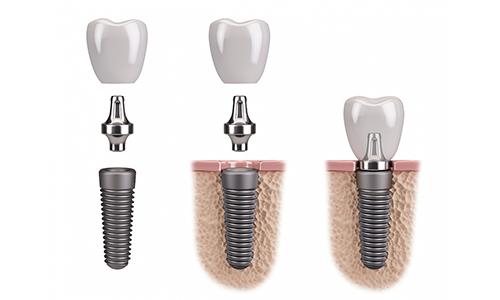имплантация зубов картинка