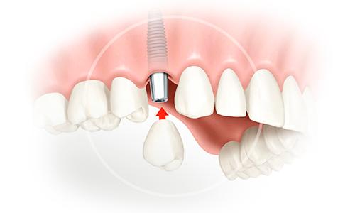 имплантация после удаления зуба фото