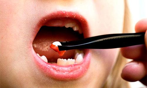 болит зуб после удаления у ребенка фото