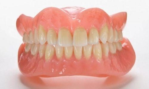 условно съемный протез на имплантах на нижнюю челюсть фото
