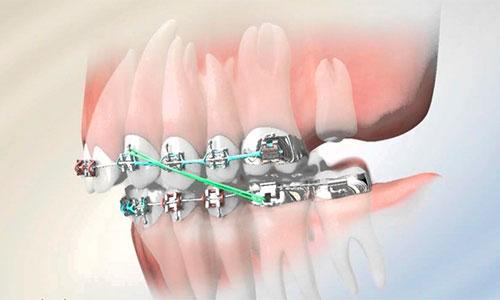 брекеты нужно ли удалять зубы мудрости фото