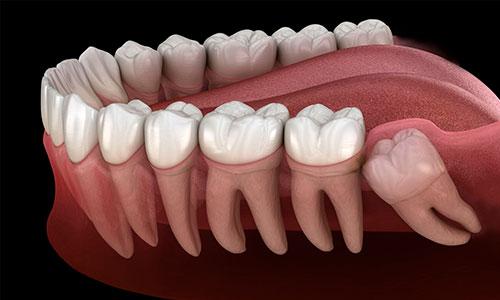 можно ли удалять зуб мудрости фото