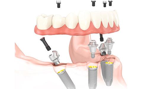 импланты на жевательные зубы какие лучше фото